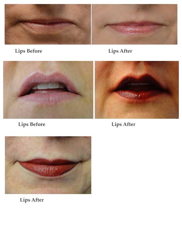 Lips-Master