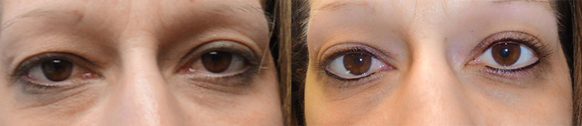 Left Before ..... Right - After Upper & Lower Eyeliner